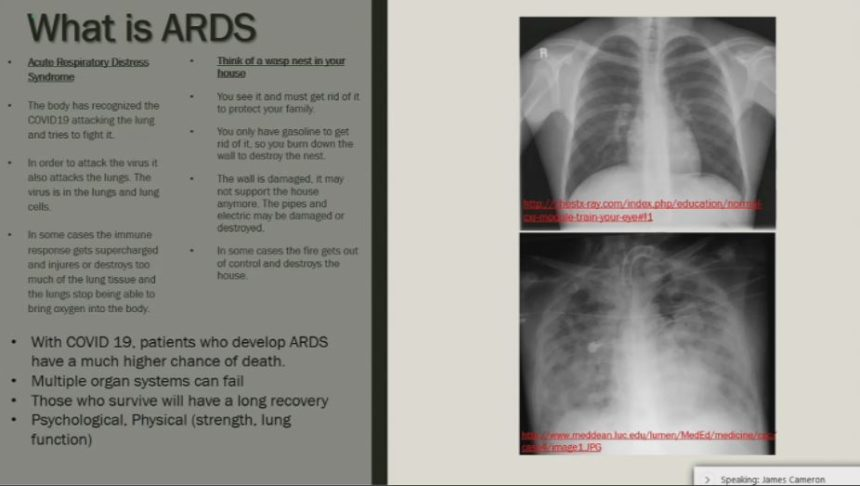 ARDS GRAPHIC