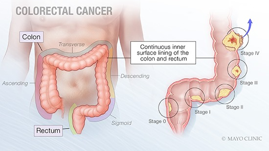 Mayo Doctor Says Be Seen And Get Screened As Colon Cancer Awareness Is Heightened